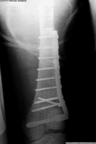 When I was 17 I was hit by a car and it smashed my leg up (Supracondylar femur fracture)